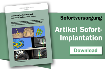 Download Abstract Sofort-Implantation